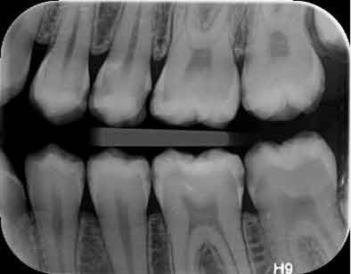 رادیوگرافی داخل دهانی
